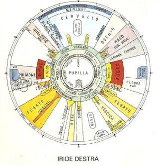 Iride destra- Analisi iridologica a Forlì